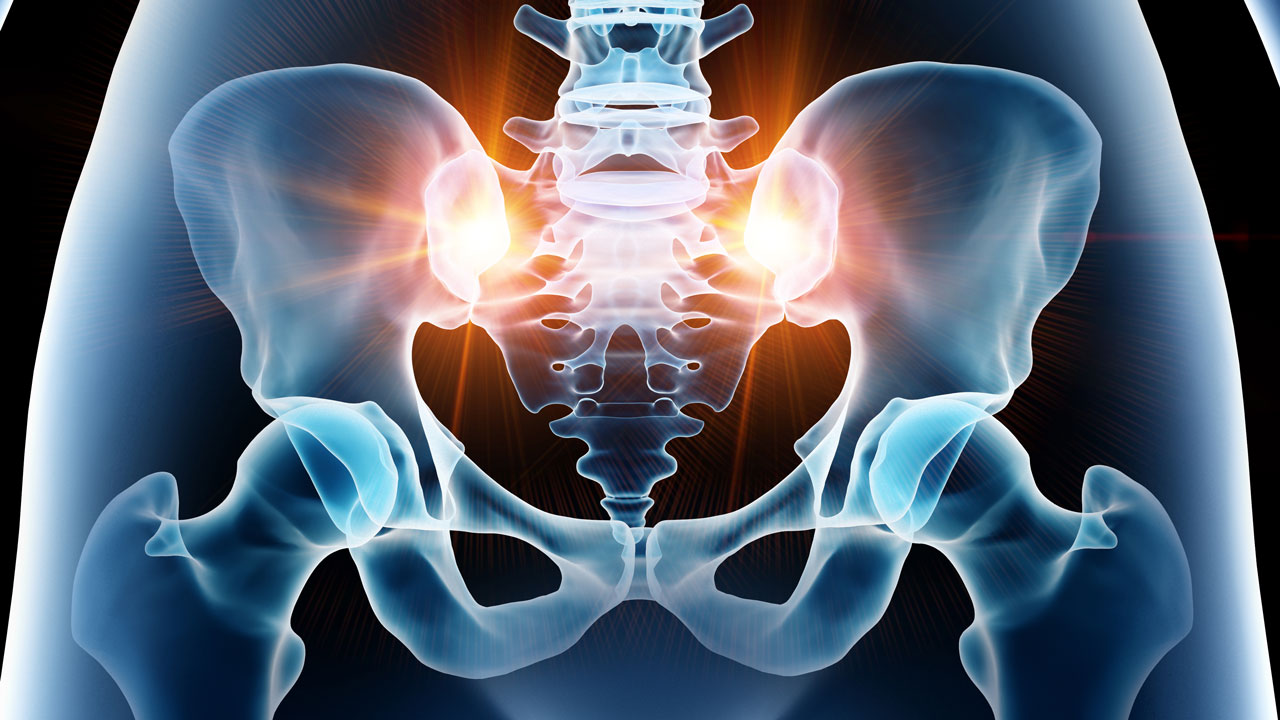si-joint-pain-causes-treatments-and-exercises