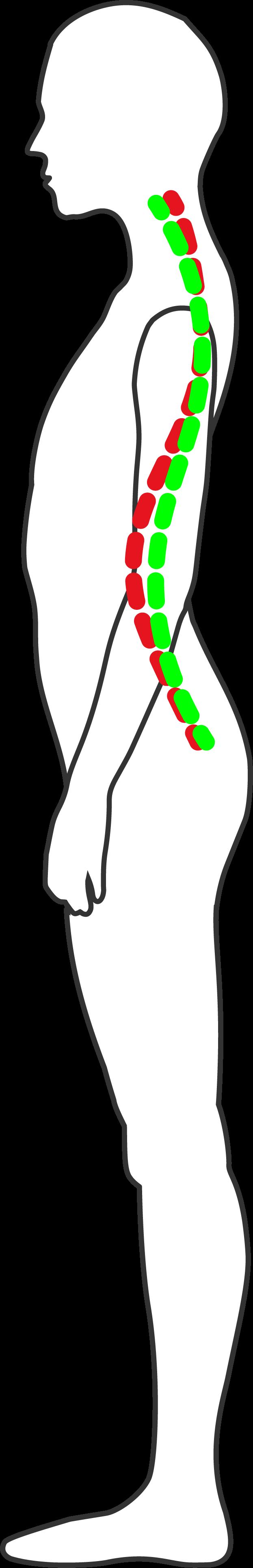 Spine Image
